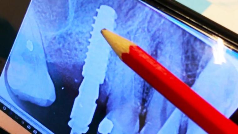 Sergio Pedano nos explica por qué es mejor colocar un solo implante que dos